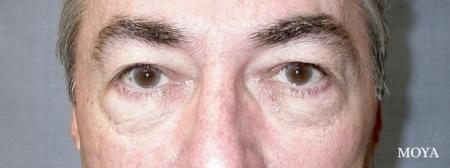 Eyelid Lift: Patient 6 - Before Image