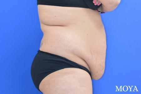 Tummy Tuck (standard) - Before Image