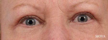 Eyelid Lift: Patient 5 - After Image