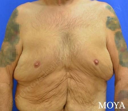 Upper Body Lift: Patient 2 - Before Image
