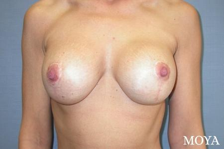 Breast Augmentation With Lift: Patient 4 - After Image