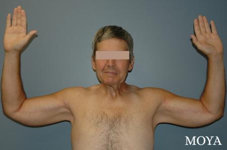 Arm Lift (major: medial incision) - After Image