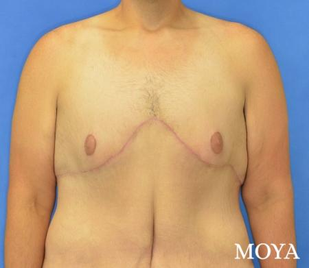 Upper Body Lift:  Patient 1 - After Image 2