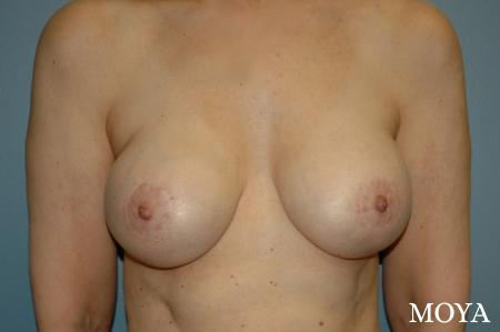 Breast Augmentation With Lift: Patient 3 - After Image