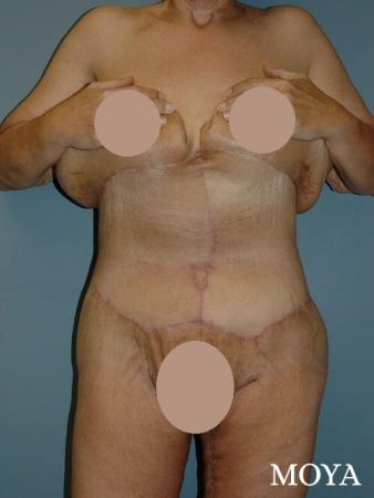 Corset Body Lift® (standard): BMI 27 - After Image