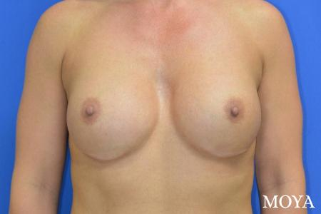 Breast Implant Exchange: Patient 4 - After Image