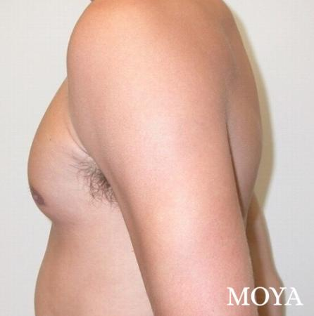 Male Breast Reduction: Patient 3 - After Image