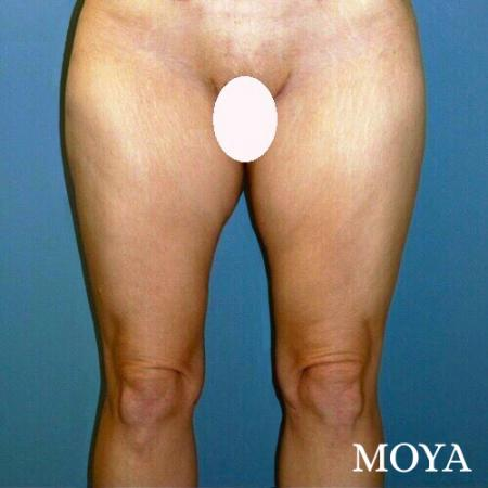 Inner Thigh Tuck - After Image