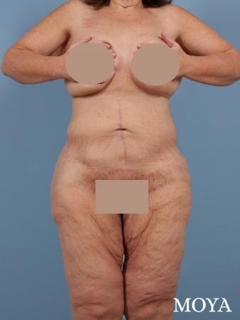 Corset Body Lift® (standard): BMI 33 - After Image
