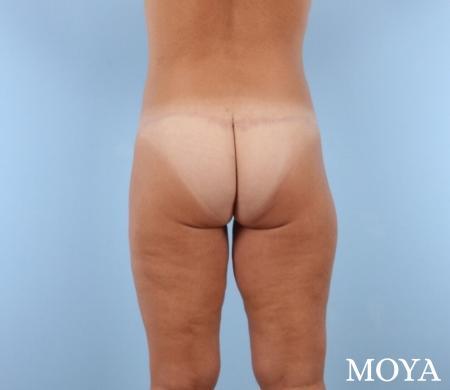 Butt Lift: Patient 3 - After Image