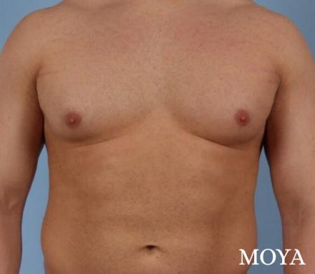 Male Breast Reduction: Patient 4 - Before and After Image 2