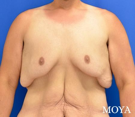 Upper Body Lift:  Patient 1 - Before Image 2