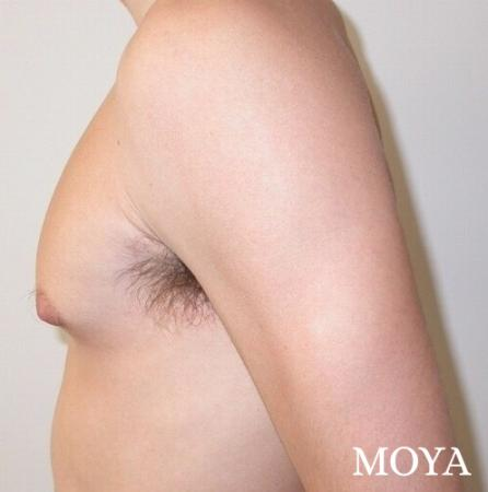 Male Breast Reduction: Patient 3 - Before Image