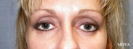 Eyelid Lift: Patient 7 - After Image