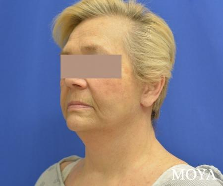 Facelift (Limited Lower) - After Image