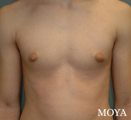 Male Breast Reduction: Patient 2 - Before and After Image 2