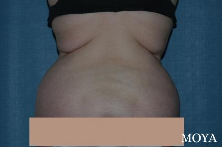 Liposuction - Back - Before Image