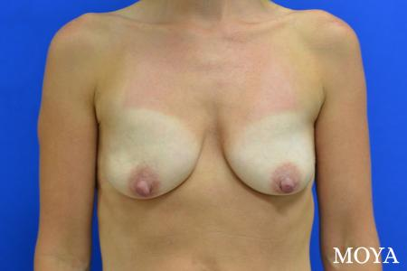 Breast Augmentation With Lift: Patient 7 - Before Image