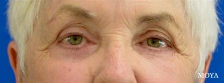 Eyelid Lift: Patient 10 - After Image