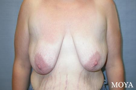 Breast Augmentation With Lift: Patient 5 - Before Image