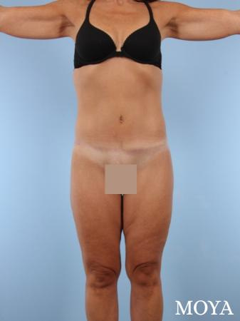 Lower Body Lift: Patient 1 - After Image