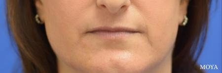 Fillers: Patient 3 - Before Image