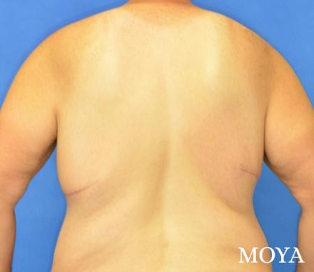 Upper Body Lift:  Patient 1 - After Image 3