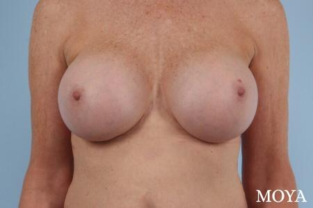 Breast Implant Exchange: Patient 6 - After Image