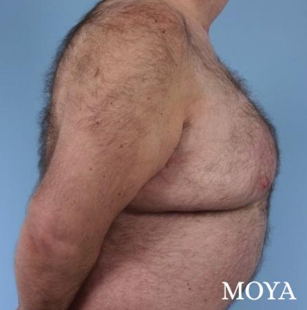 Upper Body Lift:  Patient 3 - Before Image