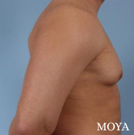 Male Breast Reduction: Patient 4 - Before Image