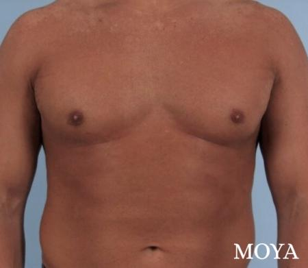 Male Breast Reduction: Patient 4 - After Image 2