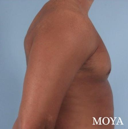 Male Breast Reduction: Patient 4 - After Image