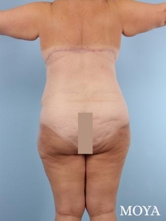 Back Lift: Patient 1 - After Image