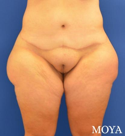 Mons Pubis Reduction: Patient 1 - Before Image