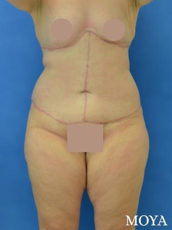Corset Body Lift® (standard): BMI 32 - After Image