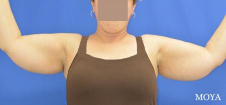 Liposuction (Arms):  Patient 2 - Before Image