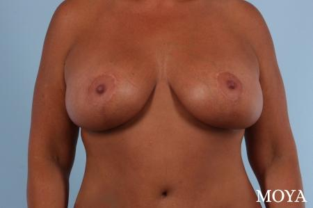 Breast Augmentation With Lift: Patient 8 - After Image