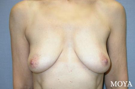 Breast Augmentation With Lift: Patient 3 - Before Image