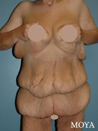 Corset Body Lift® (standard): BMI 27 - Before Image