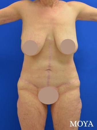 Corset Body Lift® (standard): BMI 31 - After Image