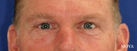 Eyelid Lift: Patient 8 - Before Image