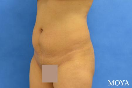 Tummy Tuck (mini):  Patient 1 - Before Image