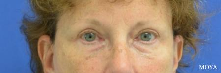 Fillers: Patient 7 - Before Image