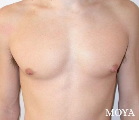 Male Breast Reduction: Patient 3 - Before and After Image 2