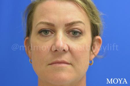 Eyelid Lift: Patient 1 - Before Image