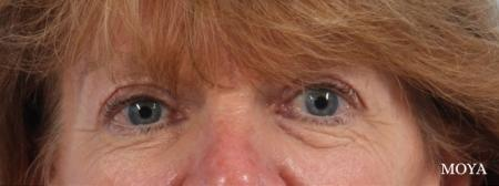 Eyelid Lift: Patient 9 - Before Image