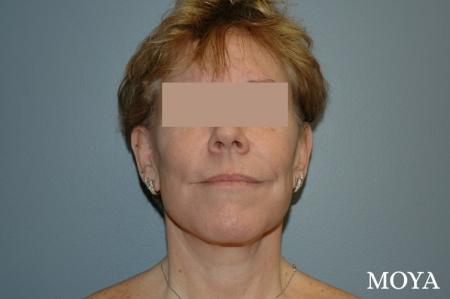 Neck Lift: Patient 2 - After Image