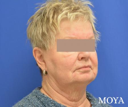 Facelift (Limited Lower) - Before Image