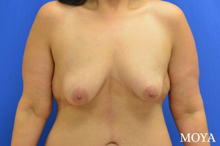 Breast Augmentation With Lift: Patient 10 - Before Image