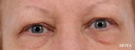 Eyelid Lift: Patient 5 - Before Image